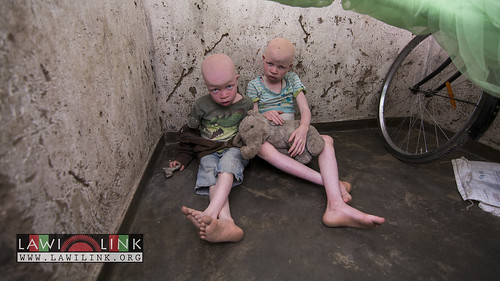 "Persons with Albinism • <a style=""font-size:0.8em;"" href=""http://www.flickr.com/photos/132148455@N06/26967550860/"" target=""_blank"">View on Flickr</a>"