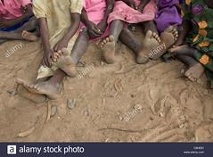childrens-bare-feet-at-a-refugee-camp-C6HE61 (Matriux2011) Tags: feet barefoot himba barfuss dirtysoles talonesrajados descalzasextremas extremebarefoot piesanchos hellsoles