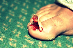 My Brothers Injury (Dirty.Streets) Tags: hospital blood toe grim nail injury horrible ae scarred angin