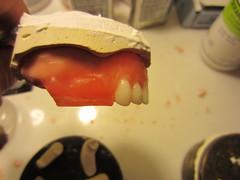 Les Dents Antérieures
