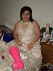 l_d51bd8b52cac086927bc0907f9c07a40 (cb_777a) Tags: broken foot toes leg cast ankle
