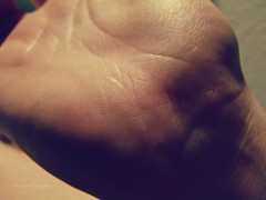 33/366 (hannersn) Tags: lines hands hand wrist scar