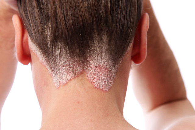 Psoriasis on back of neck