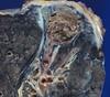 Aspergilloma in old tuberculous cavity (Pulmonary Pathology) Tags: gross cavity tb specimen pathology lung tuberculosis macroscopic aspergillus mycetoma cavitary aspergilloma