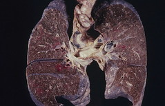 Lung - Miliary tuberculosis by Pulmonary Pathology, on Flickr