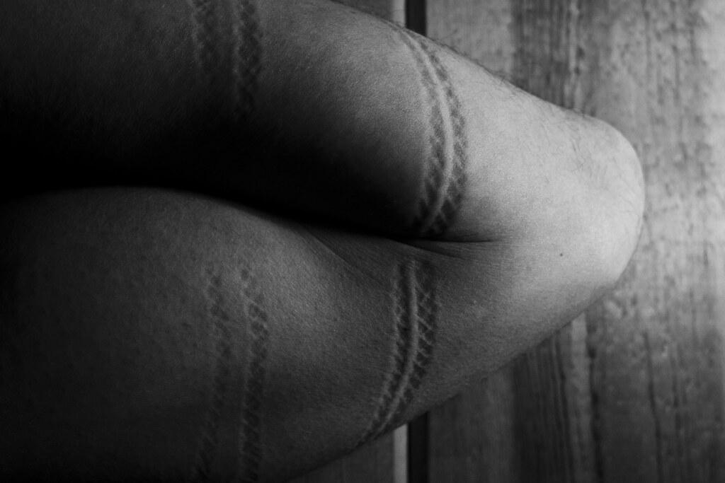 bondage rope marks