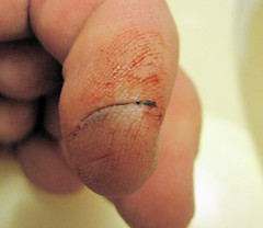 OUCH!!! (Eyellgeteven) Tags: metal ouch pain hurt blood accident cut finger injury wound grinder tool injured powertool laceration ryobi abrasive lacerate metalgrinder cuttingwheel eyellgeteven abrasivegrinder