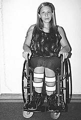 9b3f (jackcast2015) Tags: polio infantileparalysis poliomylitis braces braced calipers handicapped disabledwoman crippledwoman wheelchair