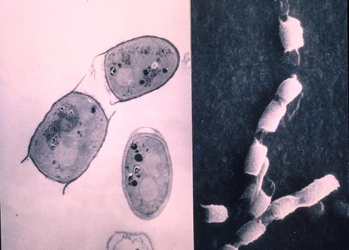 Coccidioides spores