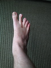 Recovery & scars from Morton's Neuroma Surgery