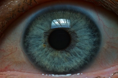 Eye, From FlickrPhotos