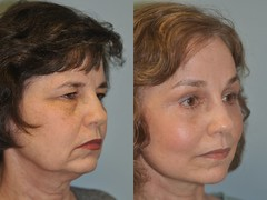 one month after facelift and browlift (ealfordmd) Tags: e1 facelift