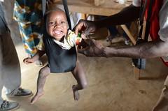 p-BFA0243 (IFRC) Tags: aid drought redcross burkinafaso nutrition sahel malnutrition burkinaberedcross