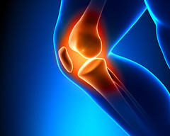 Painful Knee Close-up (lovinakapoor) Tags: man black male sport training outside person pain hurt accident outdoor body muscle leg young injury running tendon patient medical health human massage xray czechrepublic medicine glowing femur tibia arthritis athlete damaged knee jogging fitness healthcare painful joint recovery injured physical strain ligament patella symptom