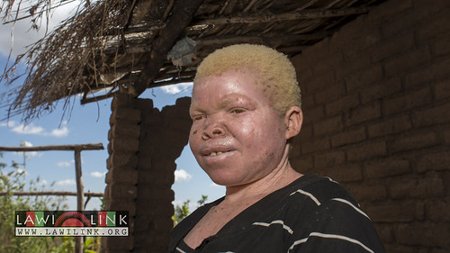 "Persons with Albinism • <a style=""font-size:0.8em;"" href=""http://www.flickr.com/photos/132148455@N06/27242965925/"" target=""_blank"">View on Flickr</a>"