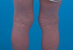 Anglų lietuvių žodynas. Žodis chronic eczema reiškia lėtinė egzema lietuviškai.