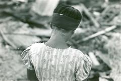 Beatrice Perez Emsley's scarred neck.