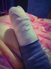 st3 (pa_lbe) Tags: arm stump bandage amputee rbe