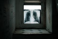 La Ventana Pulmonar (GuilleDes) Tags: ventana fotolog baldosa desenfocado radiografa