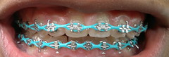 Braces 10 Months (ShaunnyDC) Tags: braces brackets rubberbands lightblue celestes frenillos frenillosdecadenas
