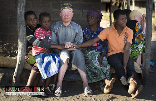 "Persons with Albinism • <a style=""font-size:0.8em;"" href=""http://www.flickr.com/photos/132148455@N06/27146521702/"" target=""_blank"">View on Flickr</a>"