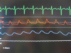 Anglų lietuvių žodynas. Žodis arterial pressure reiškia arterinis kraujo spaudimas lietuviškai.