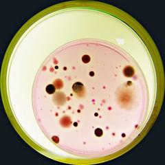 Algodão doce (Uka wonderland) Tags: plate micro bacteria microbiology petri moulds microbiologia leveduras bolores