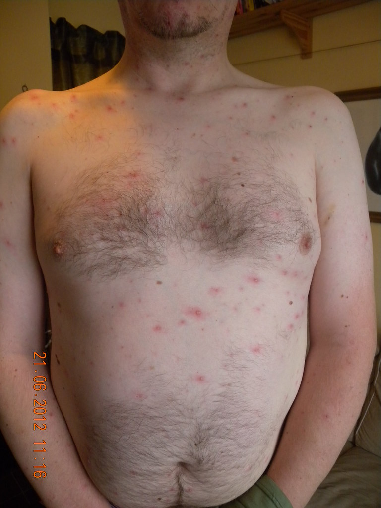 chicken pox research paper Chicken pox research papers explore a virus belonging to the herpes family, its effects, and symptoms the varicella zoster virus (vzv) is a dna virus belonging to the herpes family of.