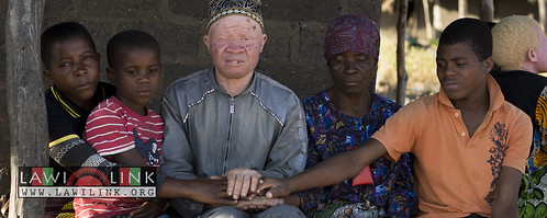 "Persons with Albinism • <a style=""font-size:0.8em;"" href=""http://www.flickr.com/photos/132148455@N06/27243541885/"" target=""_blank"">View on Flickr</a>"