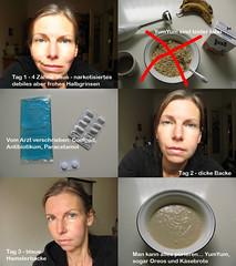 nach der Zahn OP (ziso) Tags: jaw surgery icepack jar noodles pills blau yumyum schssel fleck mash brei bruises nudeln zahnop schwellung ziso prierstab khlkissen