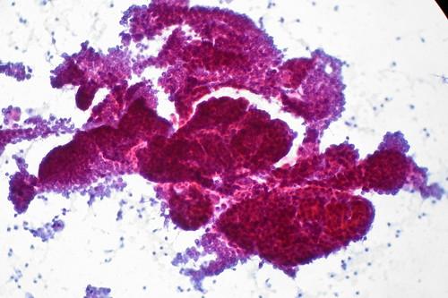Papillary Thyroid Carcinoma, FNA, Rapid Pap Stain