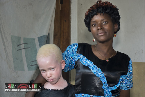 "Persons with Albinism • <a style=""font-size:0.8em;"" href=""http://www.flickr.com/photos/132148455@N06/26636899154/"" target=""_blank"">View on Flickr</a>"