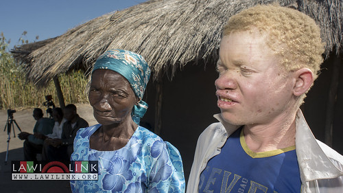"Persons with Albinism • <a style=""font-size:0.8em;"" href=""http://www.flickr.com/photos/132148455@N06/26638545263/"" target=""_blank"">View on Flickr</a>"