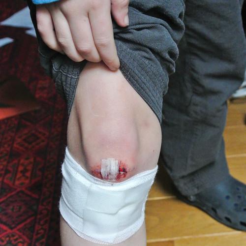 Jan met genaaide knie