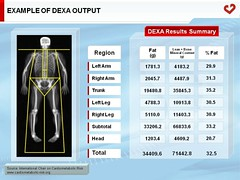Example of DEXA output (My Healthy Waist) Tags: obesity adiposetissue abdominalobesitybodyfatdistribution