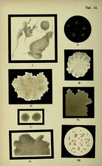 n57_w1150 (BioDivLibrary) Tags: bacteria atlases universityofcalifornialibraries bacteriologicaltechnics bhl:page=18170025 dc:identifier=httpbiodiversitylibraryorgpage18170025