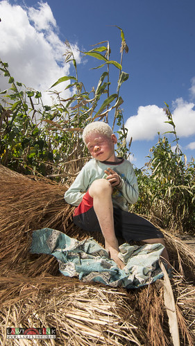 "Persons with Albinism • <a style=""font-size:0.8em;"" href=""http://www.flickr.com/photos/132148455@N06/26967973580/"" target=""_blank"">View on Flickr</a>"
