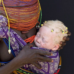 Albino Mwila Baby, Angola (Eric Lafforgue) Tags: africa two people woman baby childhood closeup female youth square person beads kid child tribal maternity difference innocence albino bebe tribe motherhood twopeople humanbeing motherandchild huila colorphoto angola southernafrica albinos mwela twopersons squarepicture ethnicgroup traditionalhairstyle  mumuila   mumuhuila mwila      southangola mumuhuilatribe mwilatribe ango3575 albinop