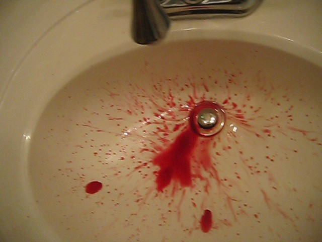 The world 39 s best photos of gore and sink flickr hive mind for Bleeding when going to the bathroom