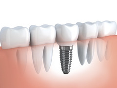 Dental implant (Retrofit Healthcare) Tags: white illustration tooth 3d bright render teeth dental dent clean medical human root dentist dentistry prosthesis enamel implant molar denture stomatology