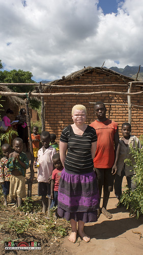 "Persons with Albinism • <a style=""font-size:0.8em;"" href=""http://www.flickr.com/photos/132148455@N06/26637347633/"" target=""_blank"">View on Flickr</a>"
