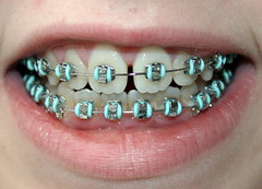 Hey Kimmie, remember these? (Bay M) Tags: braces teeth tooth mouth gob dentist corrective steel metal wire jaw lips