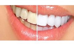 Dentist In Monmouth County (shrewsburynjdentist) Tags: county monmouth dentist in