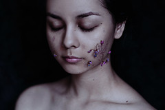 telangiectasia (Ingrid Endel) Tags: flowers portrait ingrid girl beauty pain growth ugly conceptual unsightly endel spiderveins telangiectasia ingridendel
