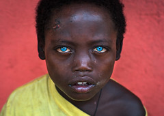 Ethiopian boy called abushe with blue eyes suffering from waardenburg syndrome, Omo valley, Jinka, Ethiopia (Eric Lafforgue) Tags: poverty africa blue boy people color cute horizontal outdoors different exterior child african blueeyes headshot omovalley ethiopia discrimination hornofafrica eastafrica thiopien jinka redbackground etiopia abyssinia onepersononly ethiopie etiopa blackskin lookingatcamera albinism  oneboyonly 67years etiopija africanethnicity ethiopi darkskinned  etiopien etipia  etiyopya  onechildonly      geneticmutations    blackethnicity waardenburgsyndrome ethio162196 abushe ocularalbinism