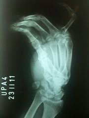 Fratura (Carolina_Rosa) Tags: hand finger medicina fracture mo dedo upa trauma edema falange fratura unidadedeprontoatendimento