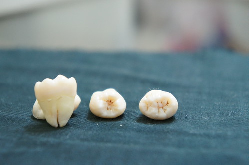 Wisdom tooth by Ghrme, on Flickr