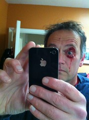tripped on sidewalk crack while running; eye vs woody shrub (thane) Tags: eye bush accident running paloalto thane shrub shiner iphone tripped