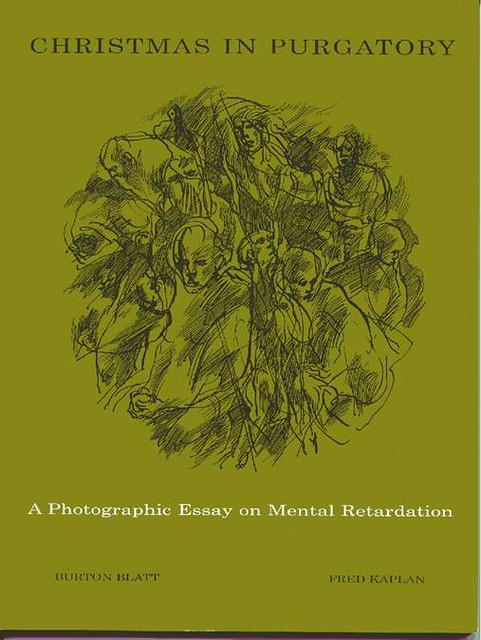 essays on mental retardation People with mental retardation face a particularly daunting set of challenges in obtaining housing of their own read about the yearlong special.