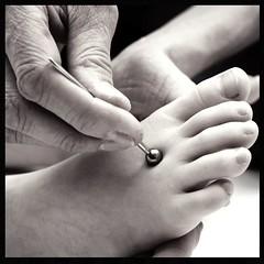 point of energy (micagoto) Tags: topv111 asian toe skin health needle medicine tcm meridian wellness treatment japenese d7000 shonishin